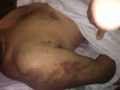 The Death of Adel Hamed Hussein by torture on the hand of militias in Tripoli